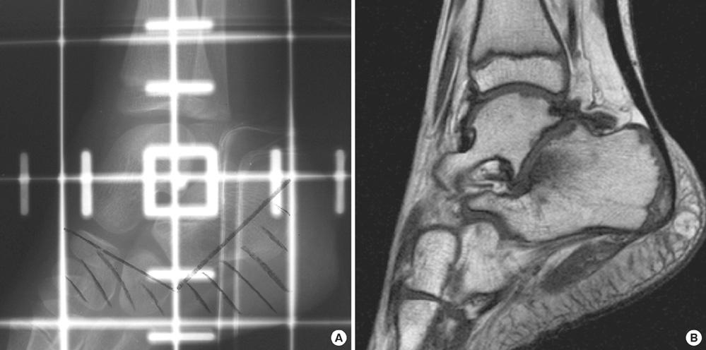 Unguent sanatos din cauza osteoartritei