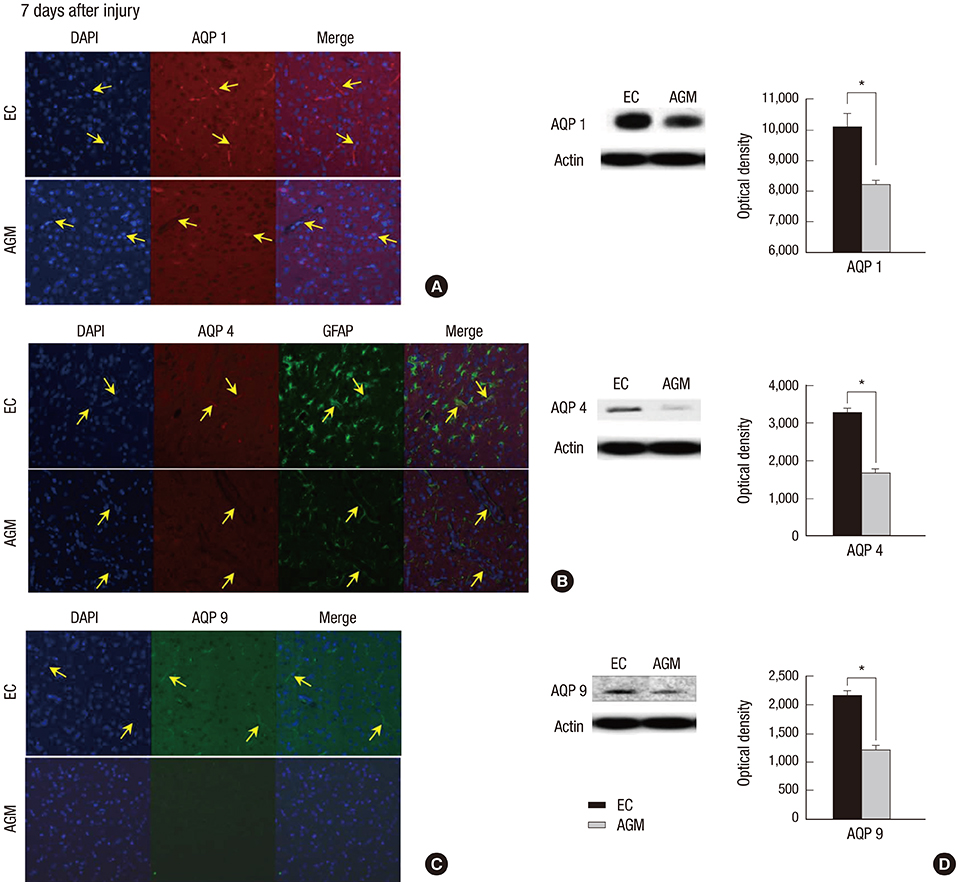 Agmatine Attenuates Brain Edema and Apoptotic Cell Death after