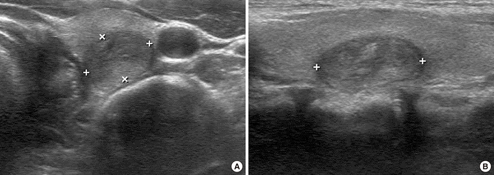 Ultrasonographic Characteristics Of The Follicular Variant